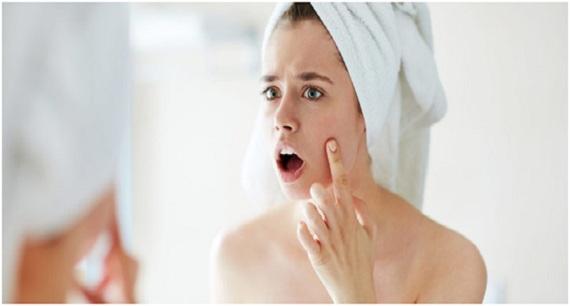 remedios para el acné