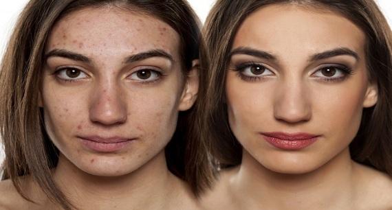 mascarilla de azufre para el acné