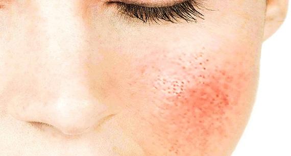 mascarillas para la piel irritada