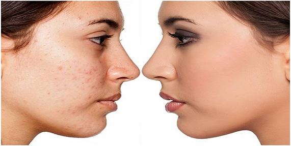 """cebolla para aclarar la piel, cebolla para el acne, """"aclarar la piel"""""""